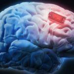 43447 Человеку впервые улучшили память мозговым имплантом