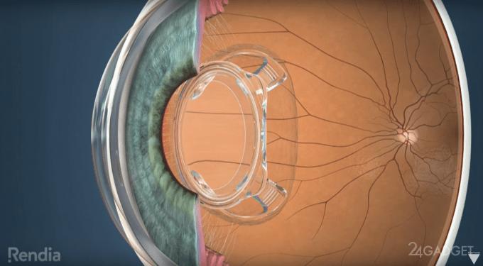 Человеческий глаз наделят суперзрением, как у роботов (3 фото)