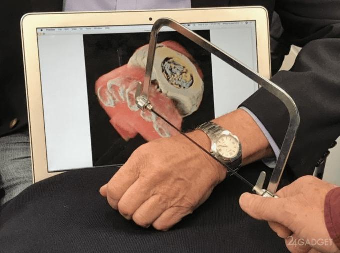 Рентгеновские снимки вскоре станут трехмёрными и цветными (5 фото + видео)